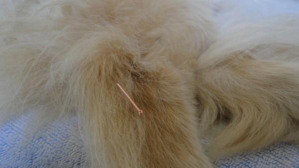 accupuncture3